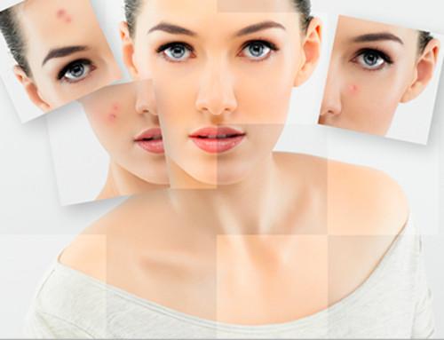 Diagnóstico de rostro vichy en octubre