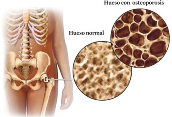 Osteoporosis en Farmacia Poyatos del Pozo en Dos Hermanas, Sevilla